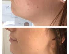 FAT DISSOLVE INJECTIONS