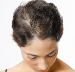 Hair Loss#1