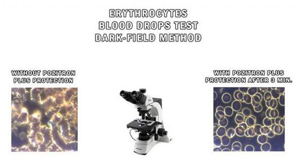 Darkfield-Method-Blood-Drops-Test-768x43