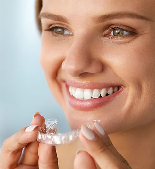 clear aligners, invisalign, clear, orthodontics, coastal orthodontics, houma, coastal orthodontics houma, smile