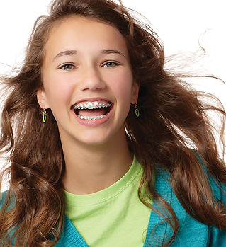 teen braces, teen orthodontics, coastal orthodontics