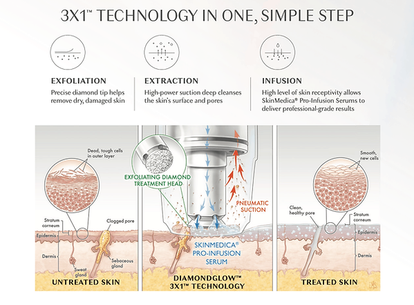 Diamond-Glow-Treatment-Process.png
