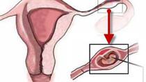 أعراض وأسباب الحمل خارج الرحم
