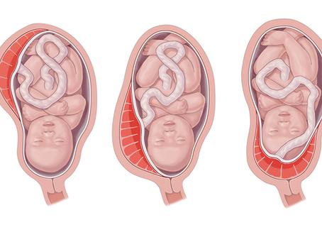 ما هي المشيمة المنزاحة وهوأثرها على الحامل والجنين