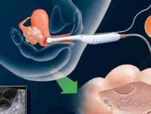 كيف تتم عملية أطفال الأنابيب؟ IVF خطوات العملية والعلاجات المطلوبة؟