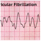 EKG/ CARDIAC TECHNICIAN TRAINING COURSE