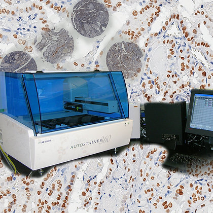 IHC for large size tissue array