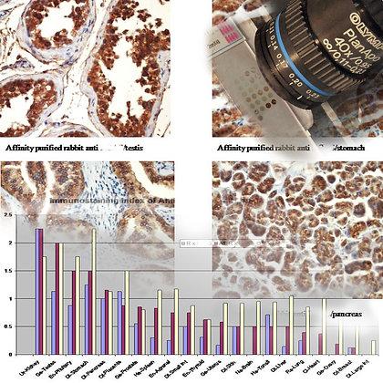 Tissue cross reactivity (TCR) examination
