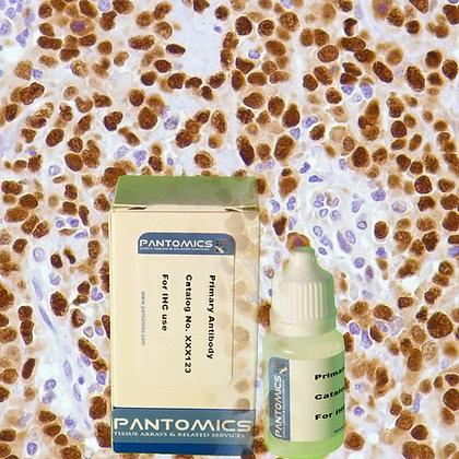 Cyclin D1  Rabbit Monoclonal Antibody