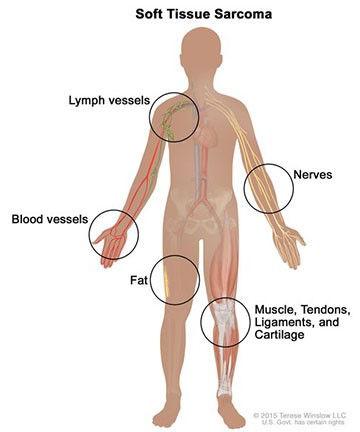 sarcoma.jpg