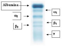 Metodele fizice si biofizice cu aplicatii in medicina. ELECTROFOREZA