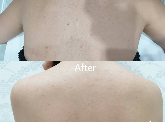 Aki clinic Back treatment before after.j