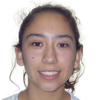 beautiful smile after braces Village Orthodontics