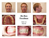 before braces crowding smile photos Village Orthodontics