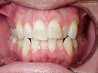 before braces smile crowding photo Village Orthodontics
