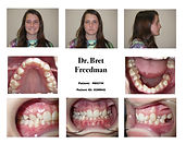 before braces smile photos narrow upper jaw Village Orthodontics