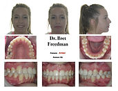 Beautiful results after extractions and braces Village Orthodontics