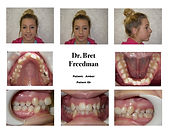 Anterior crowding before braces photos Village Orthodontics