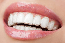 Invisalign Trays Village Orthodontics