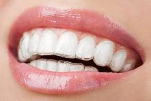 Invisalign Trays Village Orthodontics