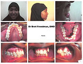 before braces crowding smile Village Orthodontics