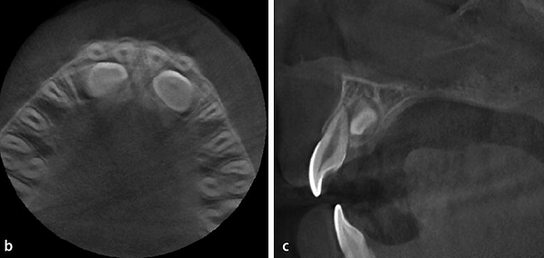 impacted canine cbct.png