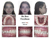 beautiful smile after braces and extraction photos Village Orthodontics