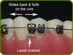 Village Orthodontics Example of broken Bracket