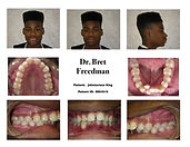 Before braces severe lower crowding Village Orthodontics