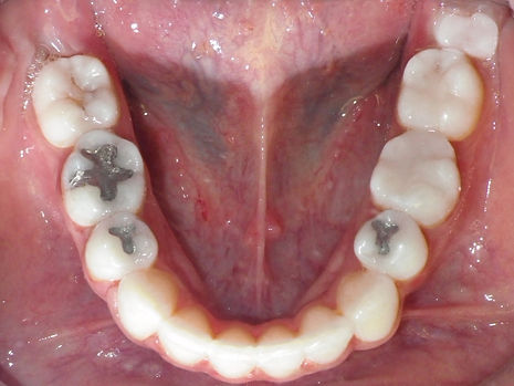 lower jaw after braces