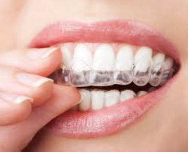 Aligner in mouth
