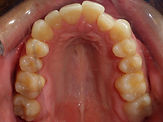 Occlusal photo before braces crowding Village Orthodontics