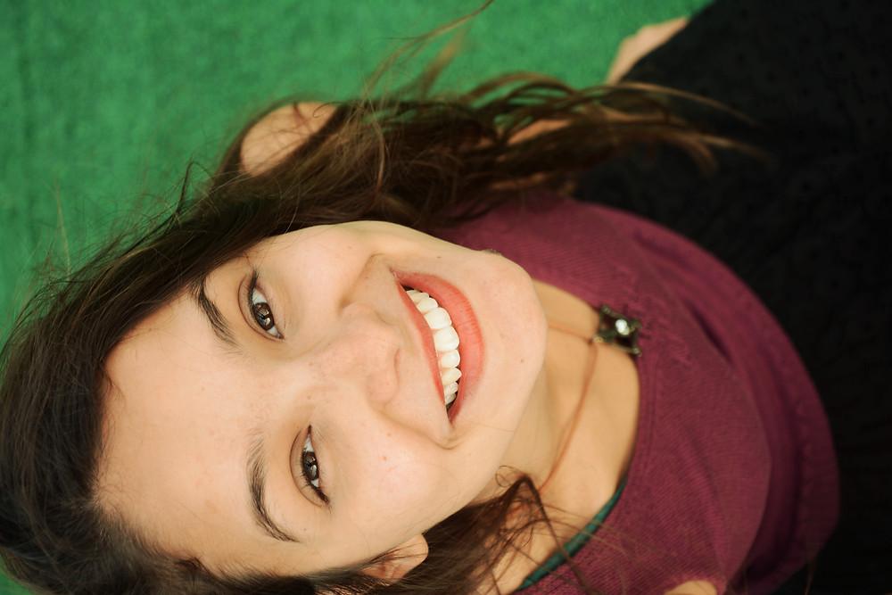 Smile after Braces
