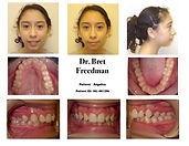 before braces deep bite crowding smile Village Orthodontics