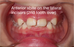 """How to """"Brace"""" yourself for your child's first orthodontic visit: A parent's guide"""