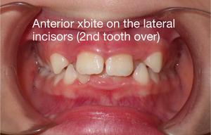 Anterior cross-bite at laterals