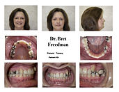 before braces crowding photos Village Orthodontics