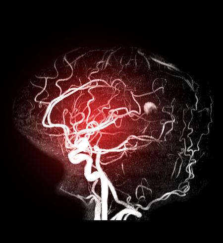 Angiographie-Gehirn