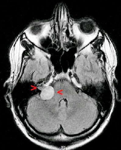 Akustikusneurinom rechts, ca. 20 x 22 x 25 mm extra- und intrameatal