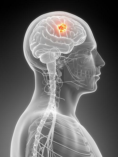 Gehirntumor.jpg