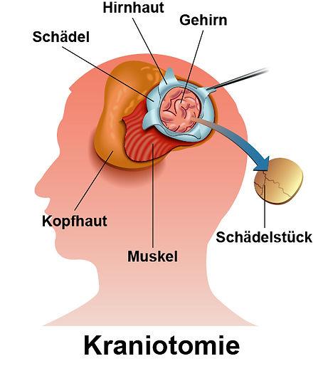 Kraniotomie.jpg
