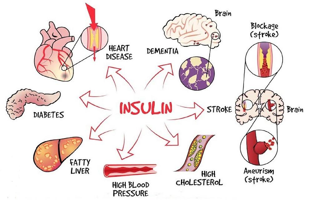 insuline foie diabète coeur nerfs cerveau cholestérol hypertension