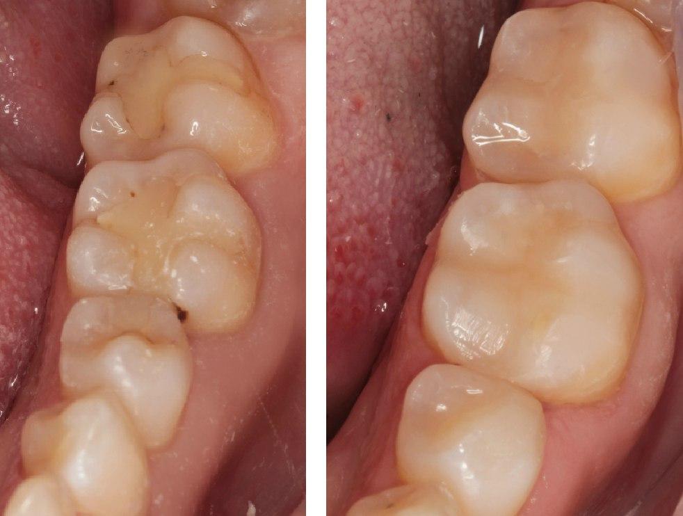 Установка пломбы на коренные зубы