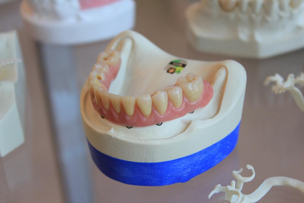 Имплантация в Самаре | Фото | Протезирование
