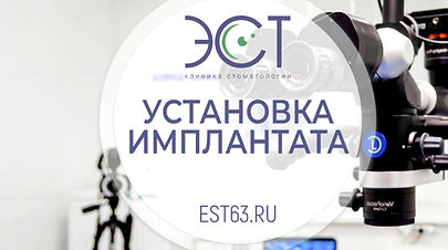 Установка зубного имплантата в Самаре | Вильшонов П.А. | Стоматология ЭСТ