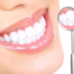 отбеливание зубов в самаре