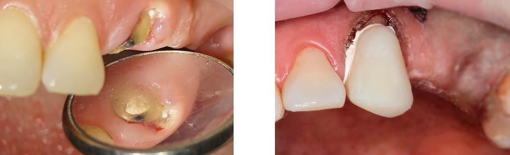 до и после | зуб под микроскопом