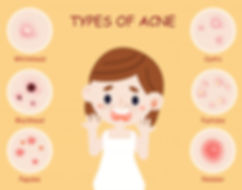 types-acne_77984-105.jpg