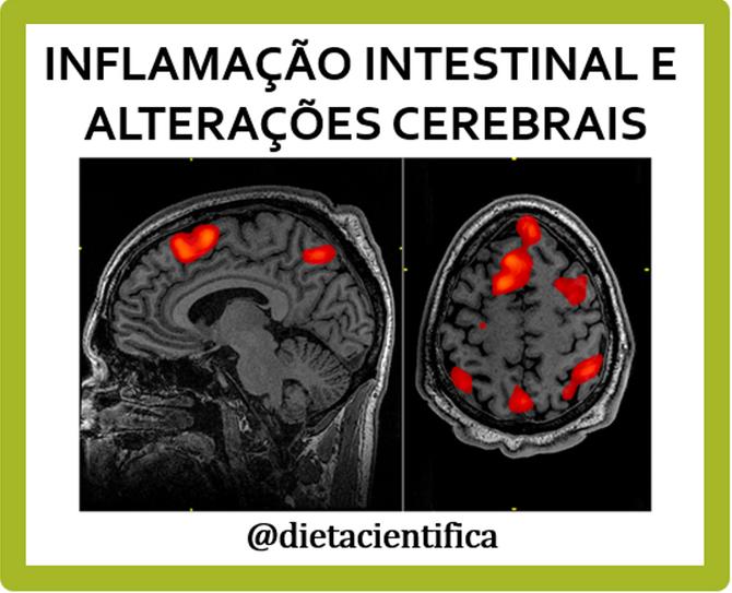 Doenças intestinais e alterações cerebrais