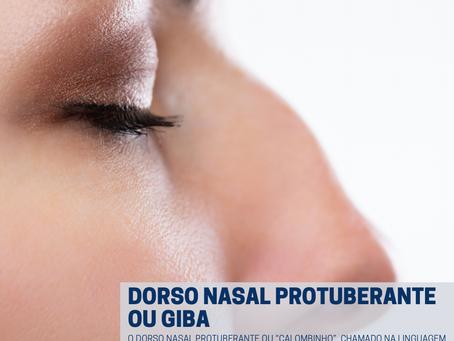 """Dorso nasal protuberante ou """"giba"""""""